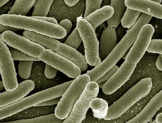 klebsiella_pneumoniae_urinary_tract_infection_2